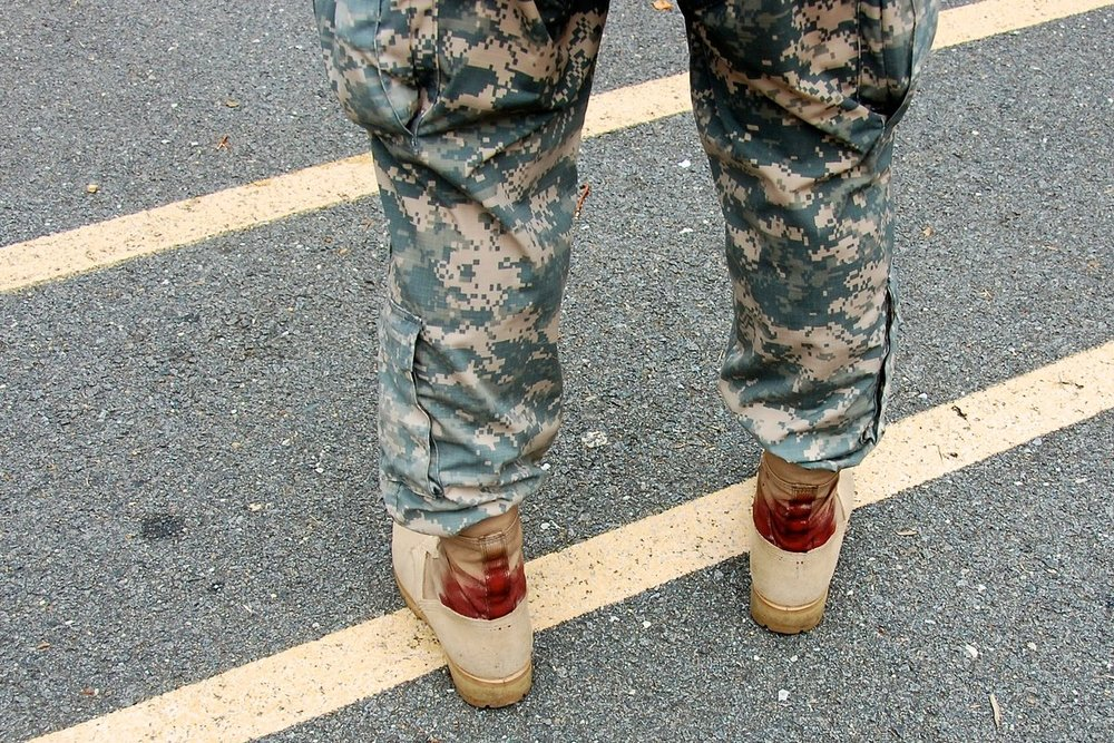 This photo reminds me of my old buddy Stephen who walked for ten days in SFAS with no skin left on his feet.